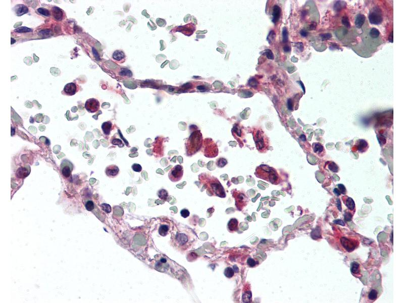 Immunohistochemistry (IHC) image for anti-Tumor Necrosis Factor (TNF) antibody (ABIN305730)