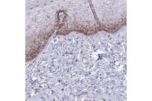 Immunohistochemistry (Paraffin-embedded Sections) (IHC (p)) image for anti-RPS6KA2 antibody (Ribosomal Protein S6 Kinase, 90kDa, Polypeptide 2) (ABIN4351287)