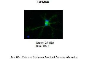 Image no. 2 for anti-Glycoprotein M6A (GPM6A) (C-Term) antibody (ABIN2790021)