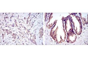 Immunohistochemistry (IHC) image for anti-Mitogen-Activated Protein Kinase Kinase Kinase 5 (MAP3K5) antibody (ABIN969273)