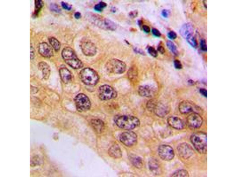 Immunohistochemistry (IHC) image for anti-Nuclear Factor of Activated T-Cells, Cytoplasmic, Calcineurin-Dependent 4 (NFATC4) (C-Term), (pSer676) antibody (ABIN2705053)