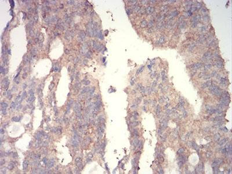 Immunohistochemistry (IHC) image for anti-Wingless-Type MMTV Integration Site Family, Member 3A (WNT3A) (AA 170-352) antibody (ABIN5542546)