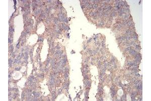 Immunohistochemistry (IHC) image for anti-WNT3A antibody (Wingless-Type MMTV Integration Site Family, Member 3A) (AA 170-352) (ABIN5542546)