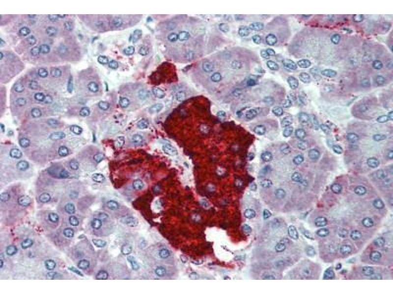 Immunohistochemistry (Paraffin-embedded Sections) (IHC (p)) image for anti-Insulin (INS) antibody (ABIN396953)