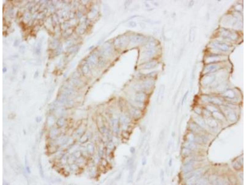 Immunohistochemistry (Paraffin-embedded Sections) (IHC (p)) image for anti-Spectrin Beta, Non-Erythrocytic 1 (SPTBN1) (AA 2100-2150) antibody (ABIN4355578)
