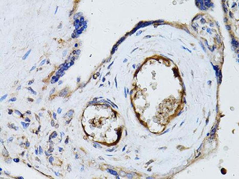 Image no. 2 for anti-Ryanodine Receptor 2 (Cardiac) (RYR2) antibody (ABIN6566568)