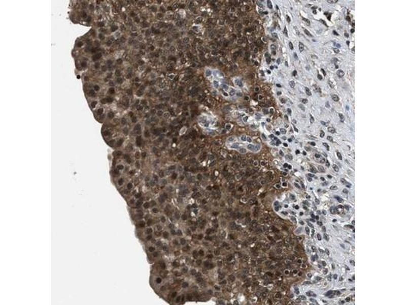 Immunohistochemistry (IHC) image for anti-RNA Binding Motif Protein 33 (RBM33) antibody (ABIN4349613)