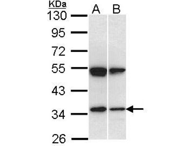 Western Blotting (WB) image for anti-SH3-Domain GRB2-Like 1 (SH3GL1) (AA 152-368) antibody (ABIN556496)
