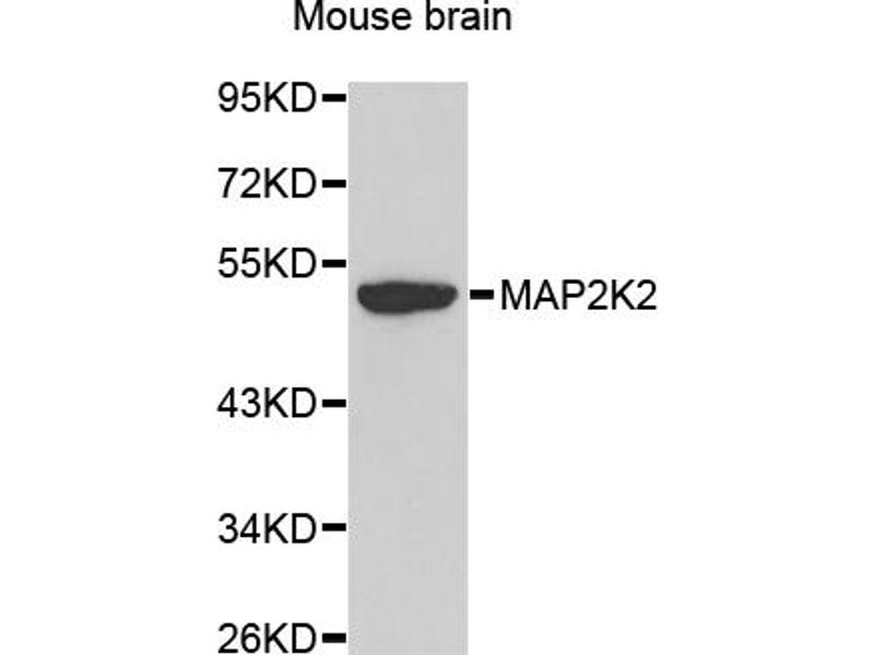 Image no. 2 for anti-Mitogen-Activated Protein Kinase Kinase 2 (MAP2K2) antibody (ABIN6566536)