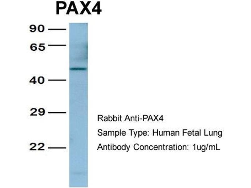 Image no. 1 for anti-Paired Box 4 (PAX4) (Middle Region) antibody (ABIN2779444)