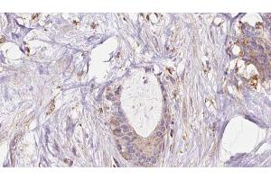 Immunohistochemistry (IHC) image for anti-Exocyst Complex Component 1 (EXOC1) antibody (ABIN6261625)