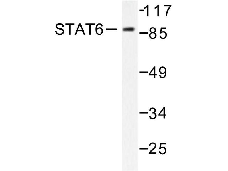 image for anti-STAT6 antibody (Signal Transducer and Activator of Transcription 6, Interleukin-4 Induced) (ABIN271832)