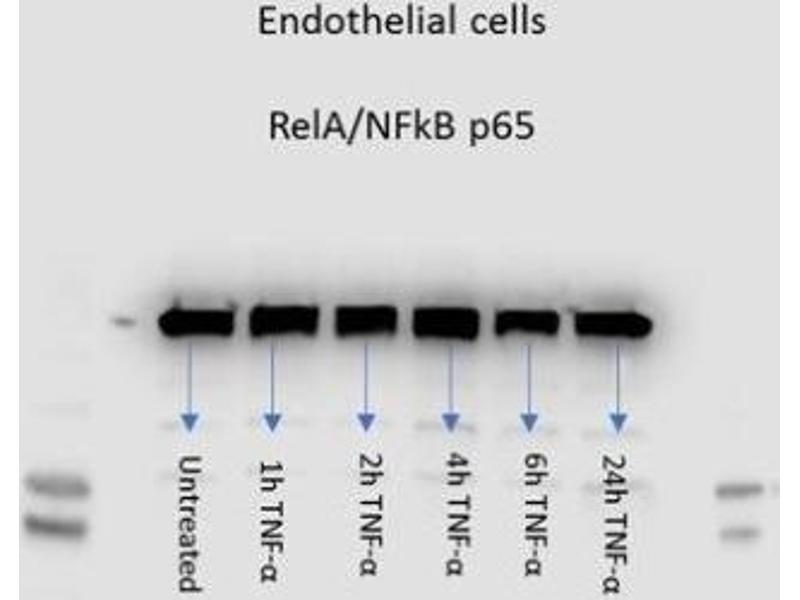 Western Blotting (WB) image for anti-Nuclear Factor-KB P65 (NFkBP65) (C-Term) antibody (ABIN151596)