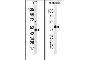 Image no. 1 for anti-Aldehyde Dehydrogenase 3 Family, Member A1 (ALDH3A1) (Middle Region) antibody (ABIN360203)