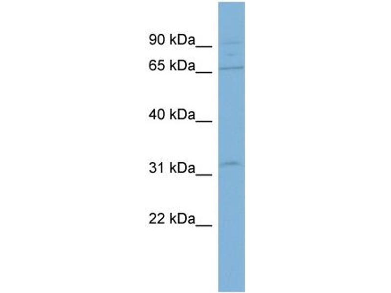Western Blotting (WB) image for anti-ADAM Metallopeptidase Domain 30 (ADAM30) (N-Term) antibody (ABIN503056)