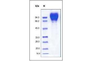 Image no. 2 for Gp120 (Gp120) (AA 36-507) (Active) protein (His tag) (ABIN2181170)