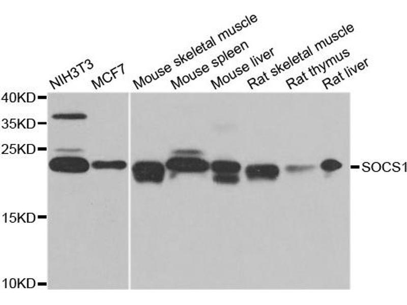 Western Blotting (WB) image for anti-Suppressor of Cytokine Signaling 1 (SOCS1) antibody (ABIN2737570)