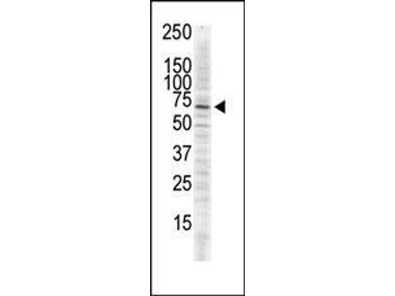 Western Blotting (WB) image for anti-Calcium/calmodulin-Dependent Protein Kinase II delta (CAMK2D) (AA 448-478), (C-Term) antibody (ABIN391314)