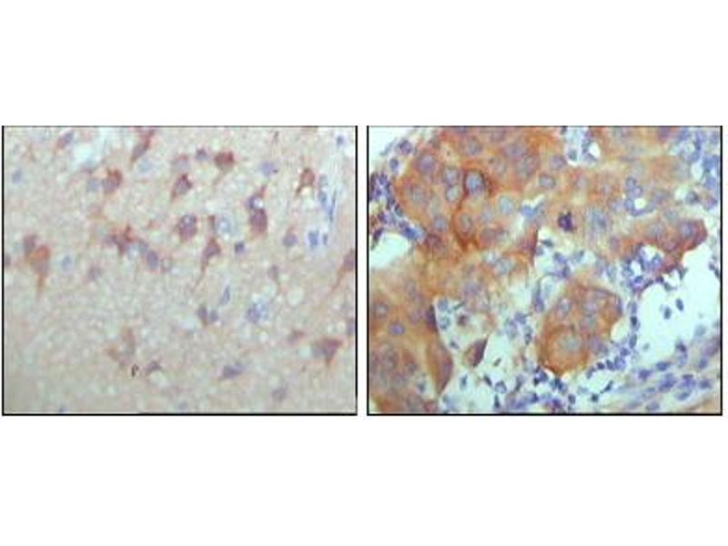 Image no. 1 for anti-Receptor Tyrosine-Protein Kinase ErbB-3 (ERBB3) antibody (ABIN1576344)