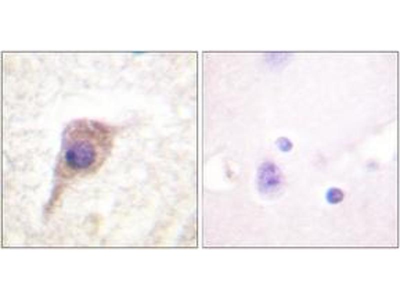 Immunohistochemistry (IHC) image for anti-PKC zeta antibody (Protein Kinase C, zeta) (pThr560) (ABIN1531510)