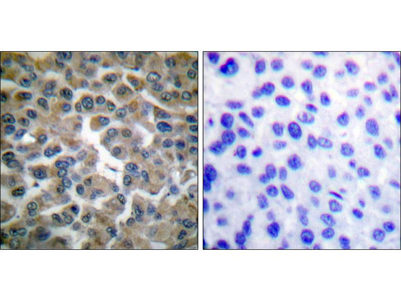 Immunohistochemistry (IHC) image for anti-NFKBIE antibody (Nuclear Factor of kappa Light Polypeptide Gene Enhancer in B-Cells Inhibitor, epsilon) (Ser22) (ABIN2449156)