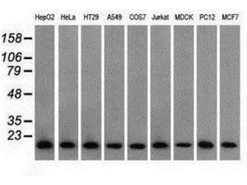 Western Blotting (WB) image for anti-Profilin 1 (PFN1) antibody (ABIN4347407)