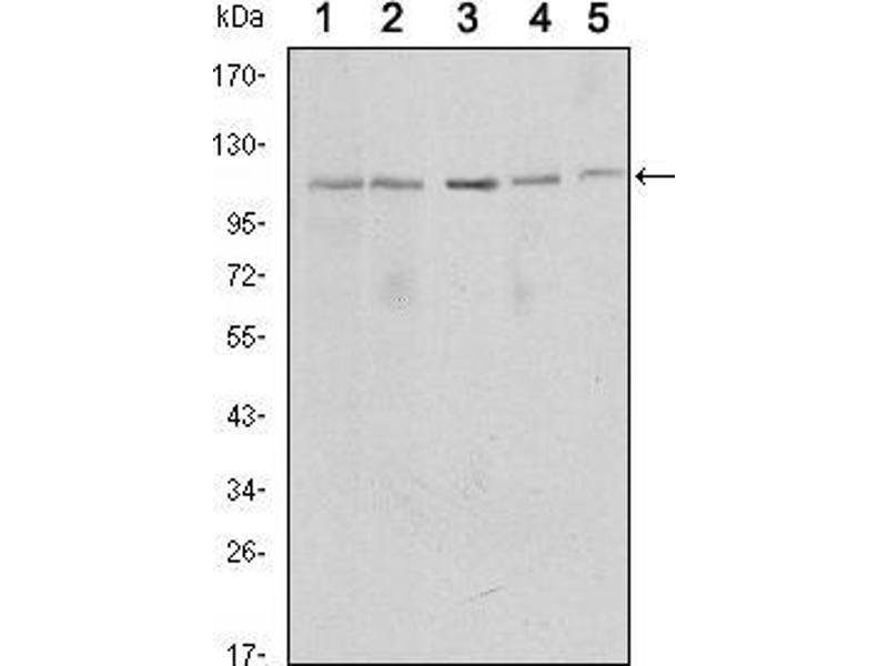 Western Blotting (WB) image for anti-Sirtuin 1 (SIRT1) antibody (ABIN969396)