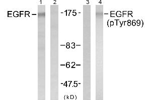 Image no. 1 for anti-Epidermal Growth Factor Receptor (EGFR) (pTyr869) antibody (ABIN1576211)