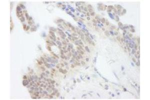 Immunohistochemistry (Paraffin-embedded Sections) (IHC (p)) image for anti-Abl-Interactor 1 (ABI1) (AA 325-375) antibody (ABIN252998)