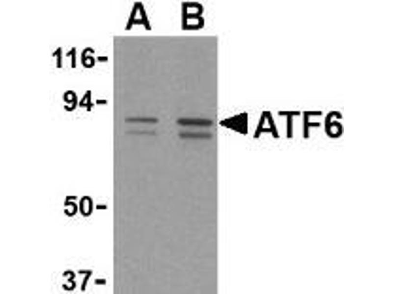 Western Blotting (WB) image for anti-ATF6 antibody (Activating Transcription Factor 6) (C-Term) (ABIN499351)