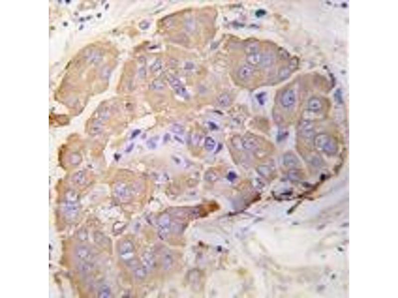 Immunohistochemistry (Paraffin-embedded Sections) (IHC (p)) image for anti-HSPB1 antibody (Heat Shock 27kDa Protein 1) (Ser82) (ABIN4620439)