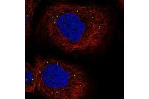 Image no. 1 for anti-Protein Associated with Topoisomerase II Homolog 1 (Yeast) (PATL1) antibody (ABIN5585266)