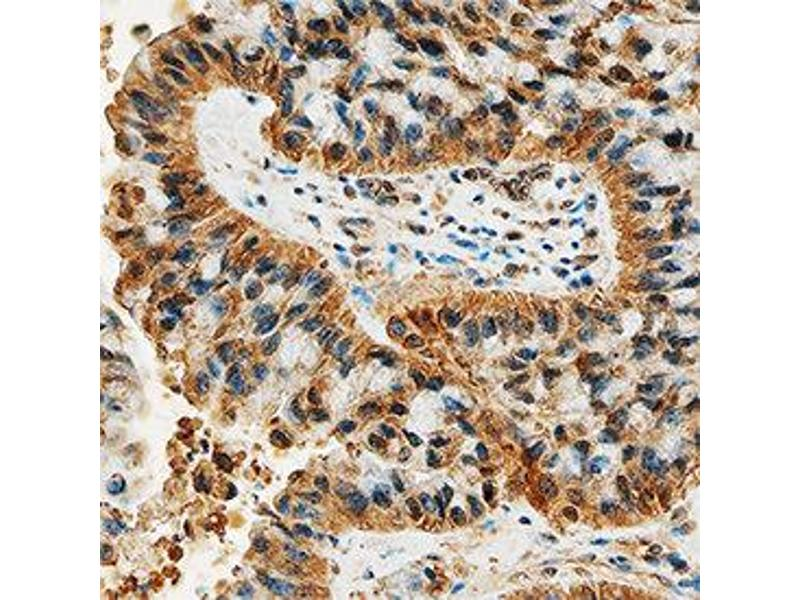 Immunohistochemistry (IHC) image for anti-DDR2 antibody (Discoidin Domain Receptor tyrosine Kinase 2) (AA 24-399) (ABIN4899816)