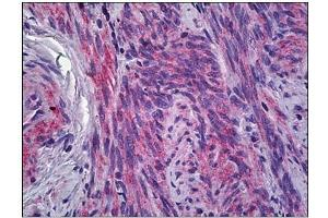 Image no. 2 for anti-Interferon-Induced Transmembrane Protein 1 (IFITM1) antibody (ABIN784135)
