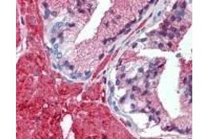 Immunohistochemistry (IHC) image for anti-TRAF2 antibody (TNF Receptor-Associated Factor 2) (AA 205-222) (ABIN2470165)