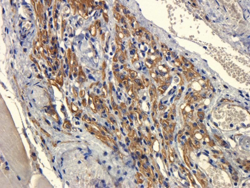 Immunohistochemistry (Paraffin-embedded Sections) (IHC (p)) image for anti-VEGFR2 antibody (Kinase insert Domain Receptor (A Type III Receptor tyrosine Kinase)) (ABIN2506667)