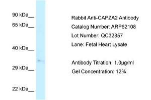 Image no. 1 for anti-Capping Protein (Actin Filament) Muscle Z-Line, alpha 2 (CAPZA2) (N-Term) antibody (ABIN2789020)