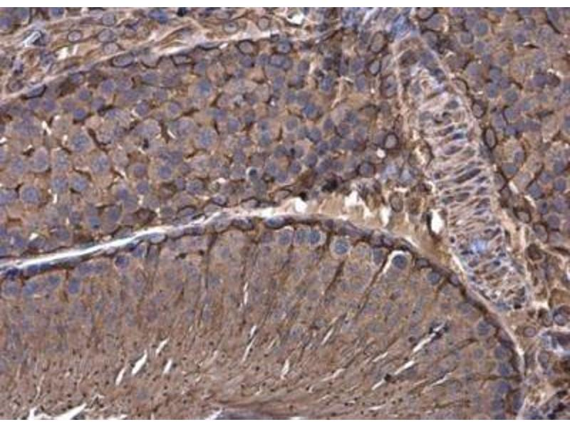 Immunohistochemistry (Paraffin-embedded Sections) (IHC (p)) image for anti-Vimentin antibody (VIM) (Center) (ABIN441334)