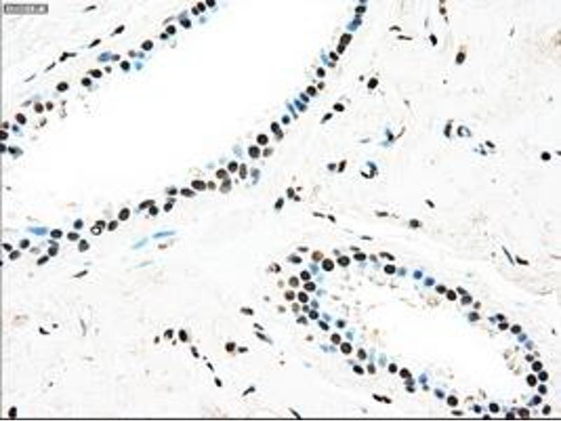 Immunohistochemistry (IHC) image for anti-TYRO3 Protein Tyrosine Kinase (TYRO3) antibody (ABIN2734691)