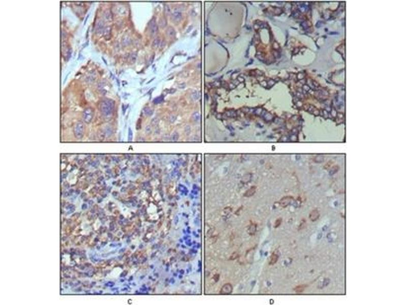 Immunohistochemistry (IHC) image for anti-WNT5A antibody (Wingless-Type MMTV Integration Site Family, Member 5A) (ABIN1109513)