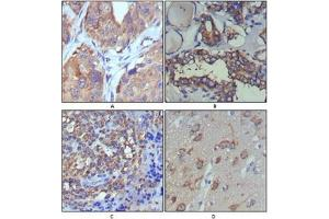 Immunohistochemistry (IHC) image for anti-Wingless-Type MMTV Integration Site Family, Member 5A (WNT5A) antibody (ABIN1109513)