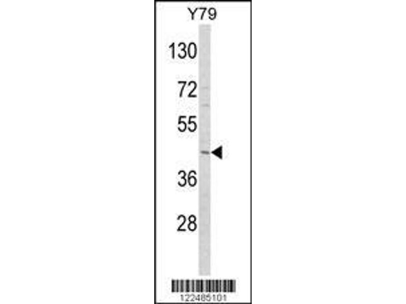 Western Blotting (WB) image for anti-Adiponectin Receptor 1 (ADIPOR1) (AA 305-331), (C-Term) antibody (ABIN652574)