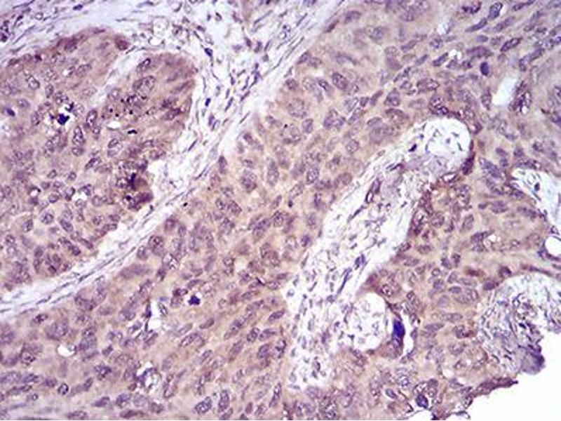Immunohistochemistry (IHC) image for anti-Caspase 7, Apoptosis-Related Cysteine Peptidase (CASP7) (AA 29-198) antibody (ABIN5542605)