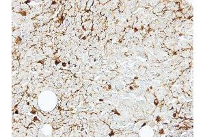 Immunohistochemistry (Paraffin-embedded Sections) (IHC (p)) image for anti-Interleukin 2 Receptor, beta (IL2RB) (C-Term) antibody (ABIN441174)