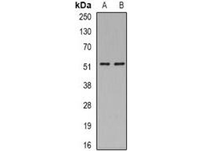 Western Blotting (WB) image for anti-Argininosuccinate Lyase (ASL) antibody (ABIN2966440)