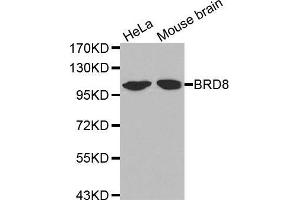 Image no. 1 for anti-Bromodomain Containing 8 (BRD8) antibody (ABIN1678904)