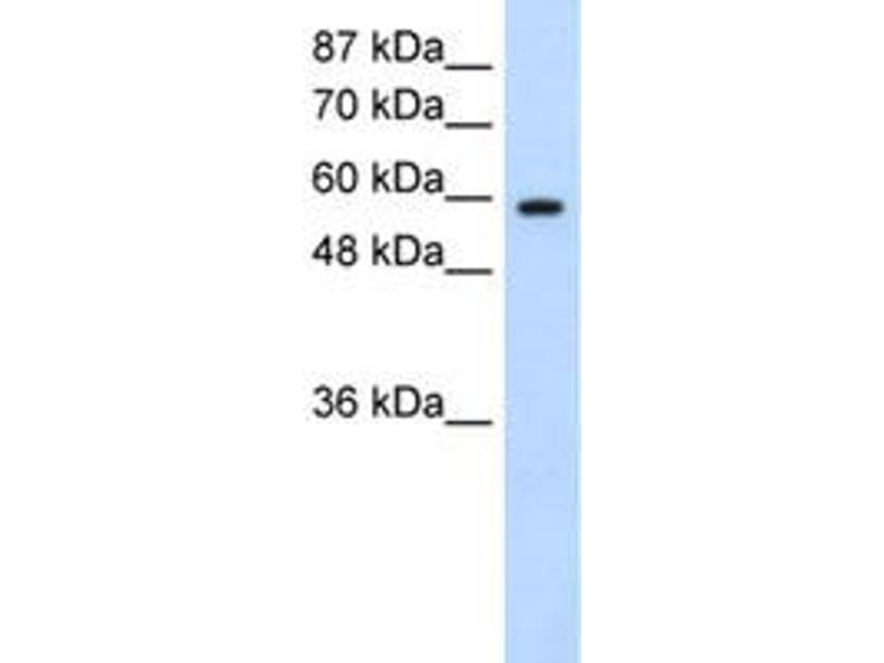Image no. 2 for anti-Deleted in Azoospermia 2 (DAZ2) antibody (ABIN5576430)