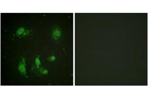 Image no. 2 for anti-Baculoviral IAP Repeat-Containing 5 (BIRC5) (AA 86-135) antibody (ABIN1532414)