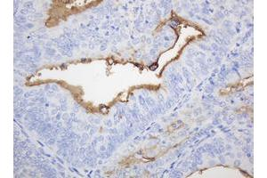 Image no. 2 for anti-Mucin 1, Cell Surface Associated (MUC1) antibody (ABIN1499597)