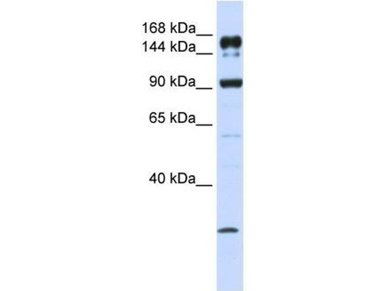 Image no. 2 for anti-ATP-Binding Cassette, Sub-Family A (ABC1), Member 5 (ABCA5) antibody (ABIN635291)